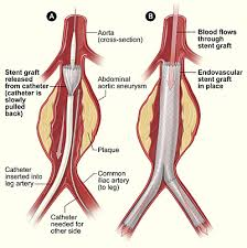 pemasangan ring pada kasus aneurisma aorta